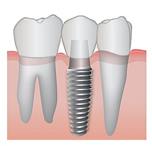 Dental Implants in Jackson TN